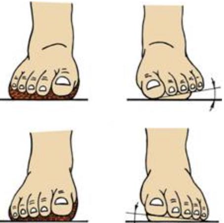 Ортезы стопы: эволюция взглядов (часть 2)
