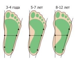 Многие ошибочно полагают, что плоскостопие не стоит особого внимания, так как оно не лечится.