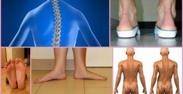 Стопа в динамическом поддержании вертикального положения тела человека