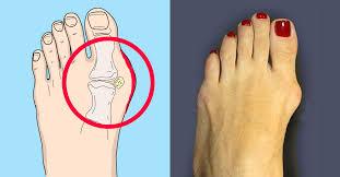 Баба Яга Костяная нога, или Почему растет косточка у большого пальца