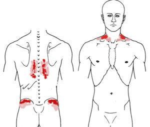 Клинические варианты миофасциального болевого синдрома (МФБС) у пациентов с поперечным плоскостопием