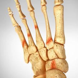 Маршевый перелом, что это такое и как его лечить