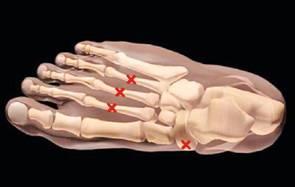 Так называемые «усталостные» переломы (или «маршевые», или «стресс-переломы») костей стопы и голени в первые 4–6 недель не визуализируются на рентген-снимке.