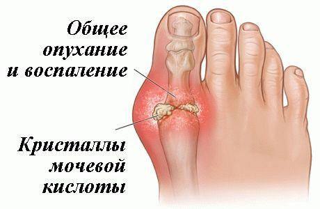 Камни на стопах, соль в крови и болезнь изобилия