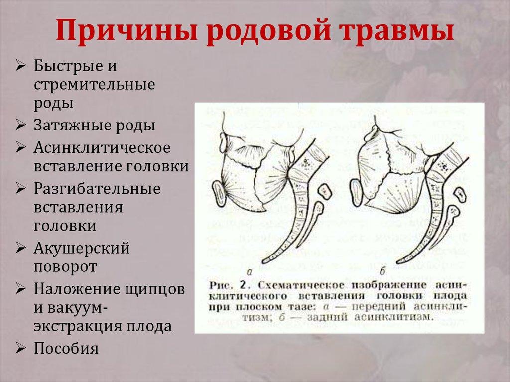 Перинатальные аспекты ранних и отсроченных дисфункций нервной системы и опорно-двигательного аппарата у детей (часть 2)