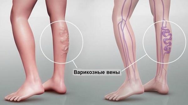 Лечение и профилактика варикоза